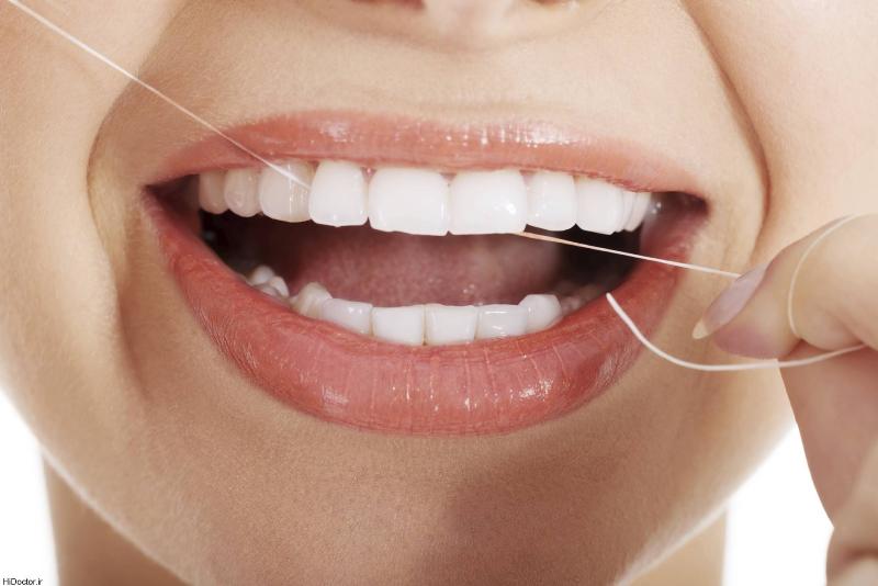 مزایای نخ دندان برای دندان های حساس