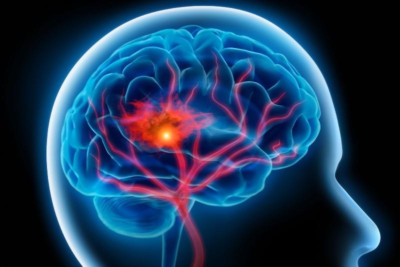 ضربه به مغز و خطر پس از آن