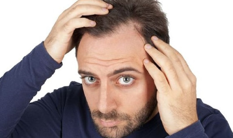 تاثیر و عوارض استرس روی پوست و مو