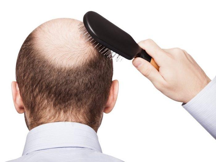 چه مقدار ریزش مو در روز طبیعی است؟