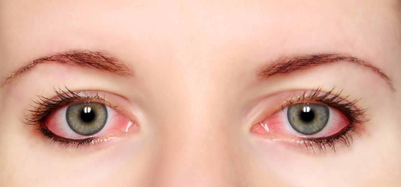 با علل مختلف قرمزی چشم ها و راهکارهای رفع آن آشنا شوید