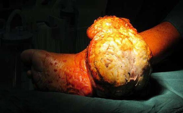 تومور عجیب یک بیمار از پایش خارج شد + عکس
