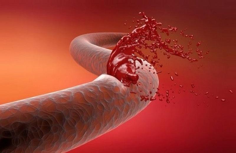 علائم خونریزی داخلی چیست؟