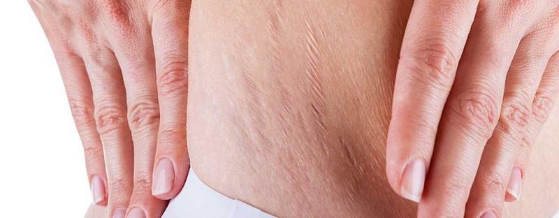علل و درمان استرچ مارک یا ترک های پوستی
