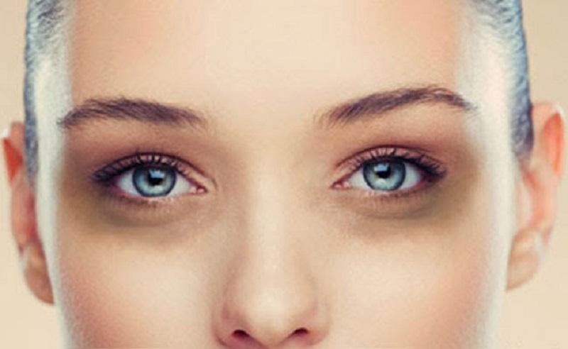 درمان حلقه های سیاه دور چشم