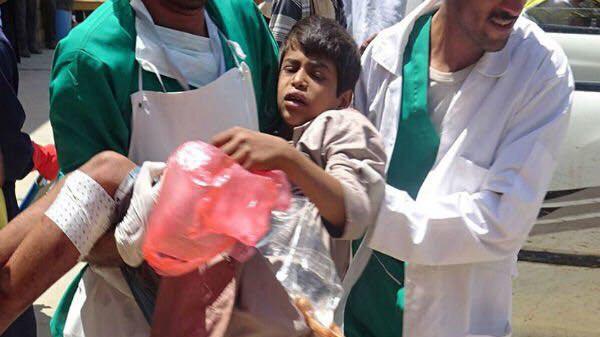 بمباران مرکز خون کودکان توسط سعودیها + عکس