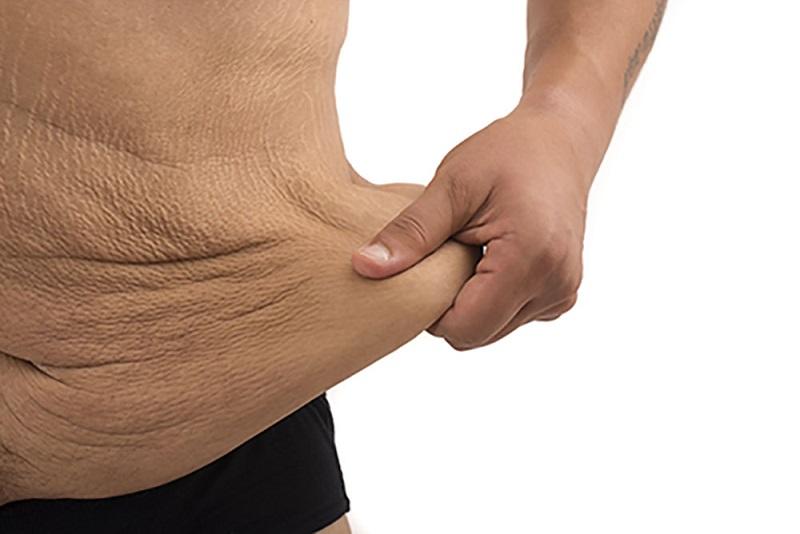 چطور از پوست شل بعد از کاهش وزن خلاص شویم؟