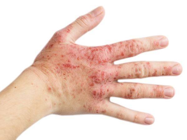 دو عامل مهم شیوع اگزمای پوستی در زنان