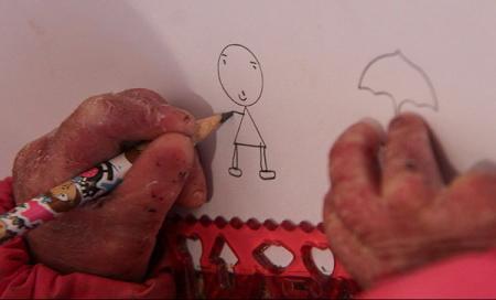 آزمایشهای جدید برای پیشگیری از تولد نوزادان «ای بی»