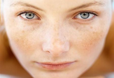 درمان لک پوست با نسخه طبیعی