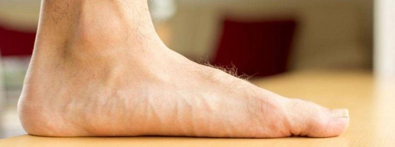 صافی کف پا به چه علت ایجاد میشود؟