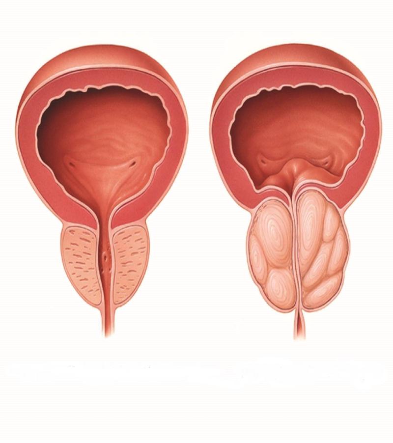 علت بزرگ شدن پروستات چیست؟