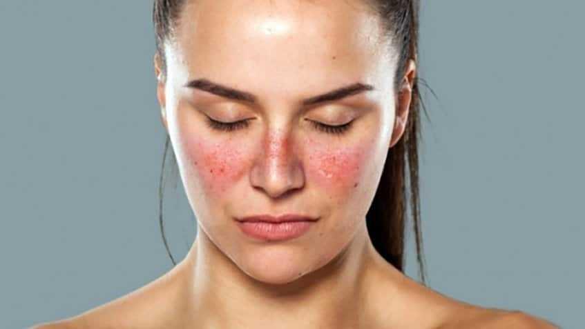 اگر این علائم را دارید دچار بیماری لوپوس شدهاید