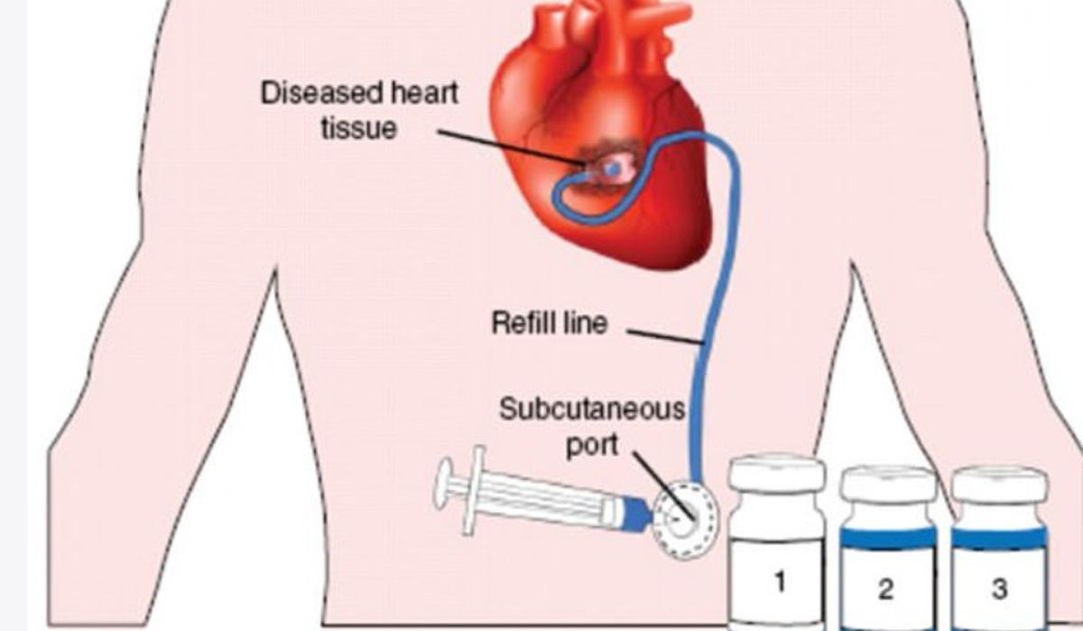 دارو رسانی مستقیم به قلب با دستگاه جدید