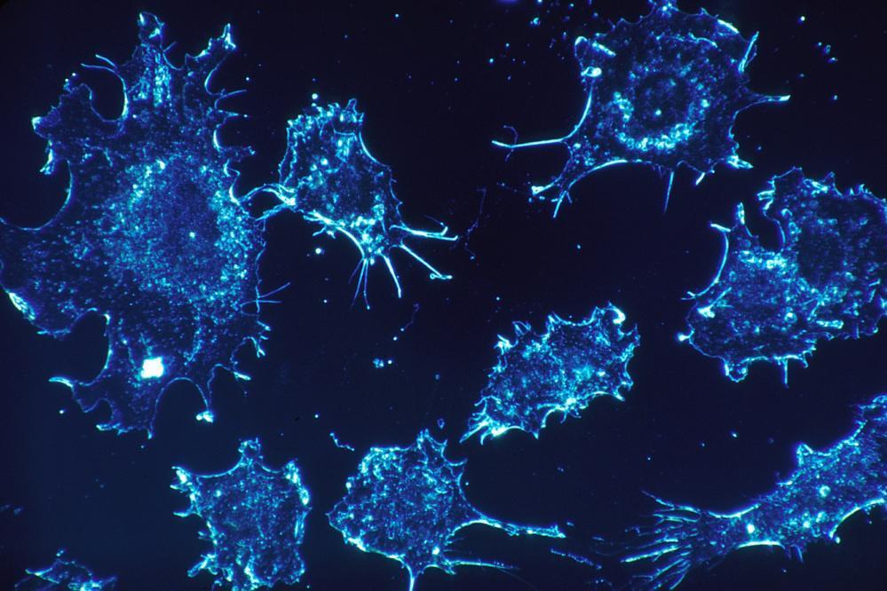 پیشگیری از رشد سلول های سرطانی با یک داروی جدید