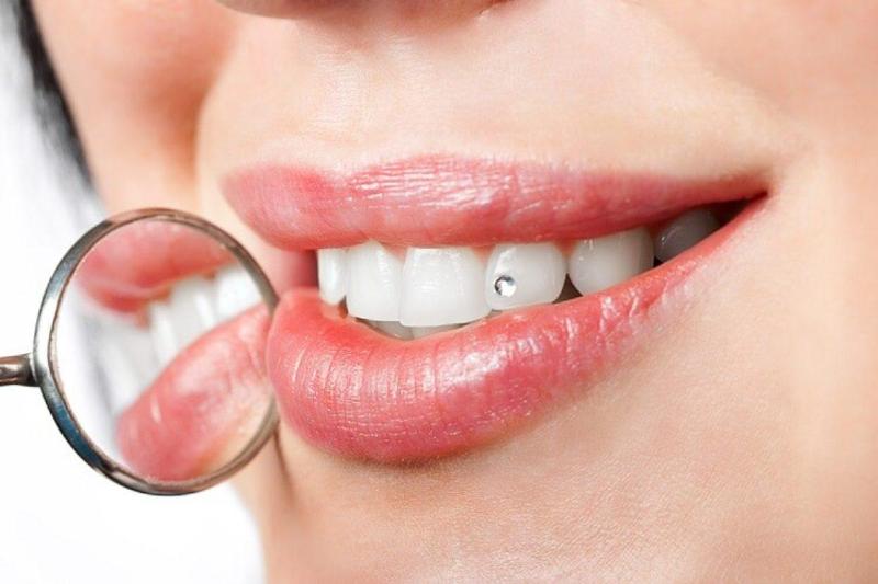 چگونه به جنگ پوسیدگی دندان برویم؟