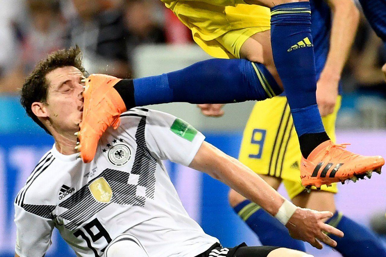 لحظه ترس آور شکسته شدن بینی بازیکن آلمان + عکس