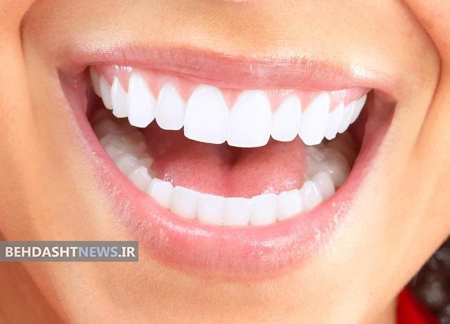 هشت راه ساده برای داشتن دندان هایی سفید و لبخندی زیبا