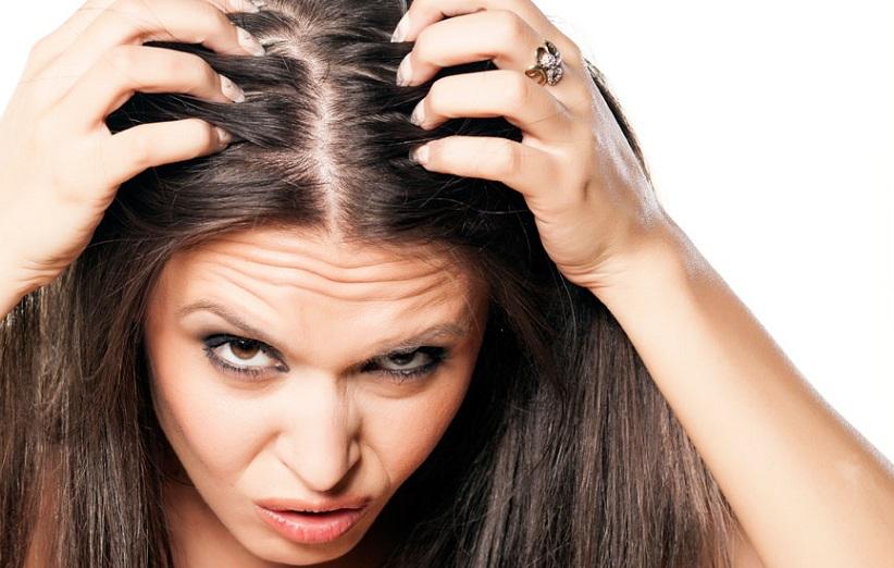 ۷ علت اصلی خارش پوست سر و راه درمان آنها