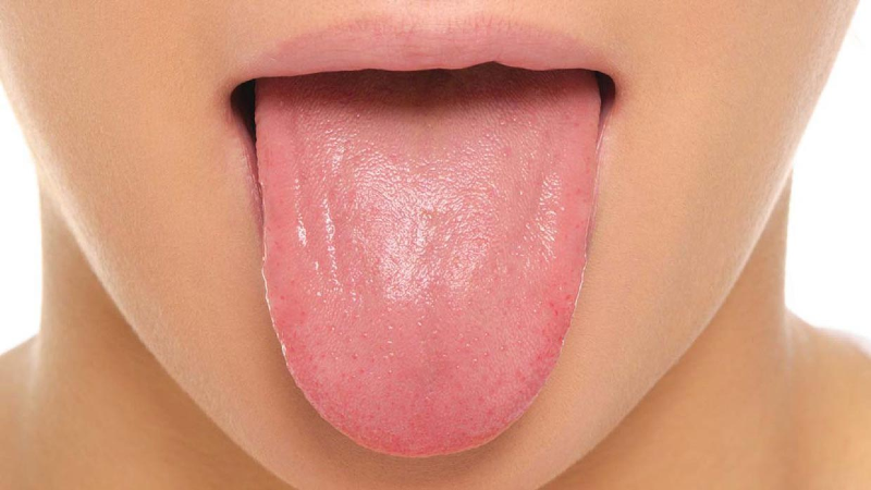 بار زبان چیست و درمان آن چگونه است؟