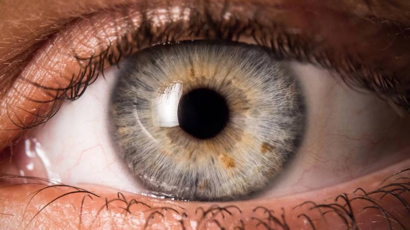 لکه خونی در چشم نشانه چیست؟