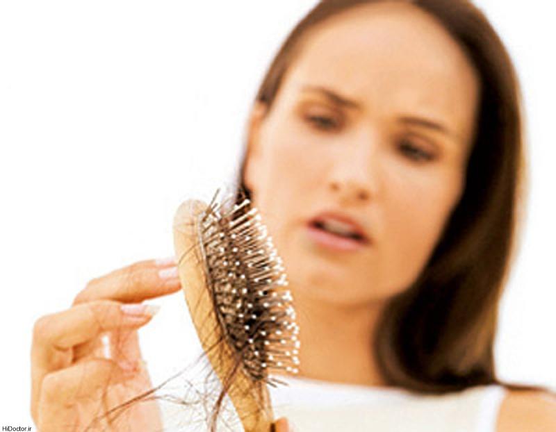 کدام ریزش مو برگشتپذیر است؟
