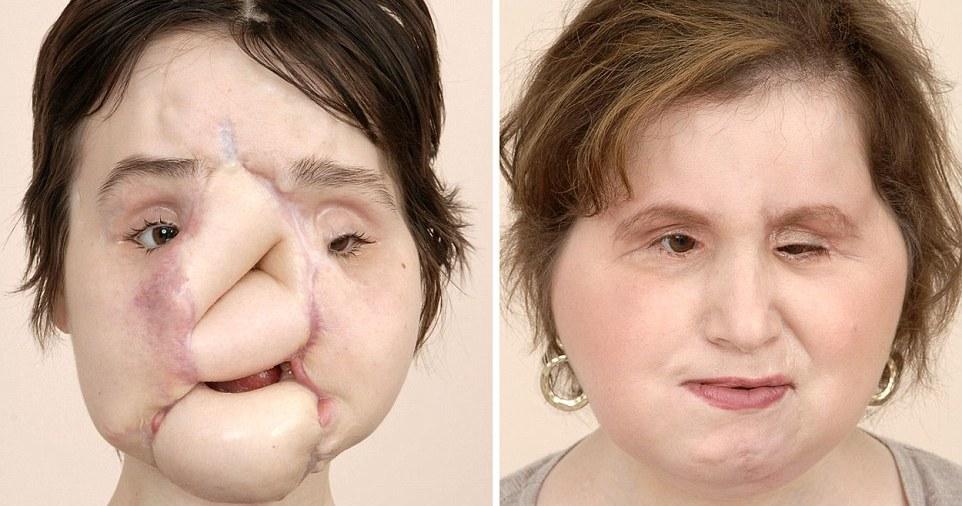 طولانیترین و پیچیدهترین جراحی پیوند صورت در جهان + تصاویر