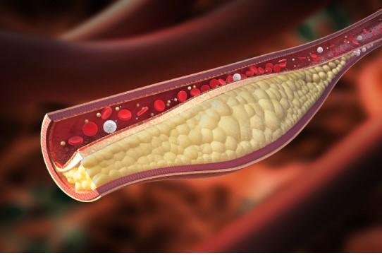 هرآنچه در مورد کلسترول خون باید بدانید