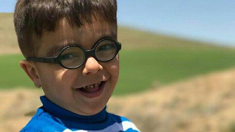 نامادری بی رحم پسر ۵ ساله را با دندان پاره پاره کرد + عکس
