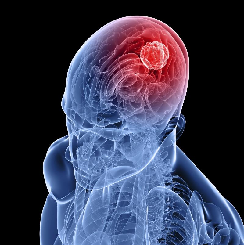 ارتباط سندروم ژنتیکی و تومور مغزی در کودکان