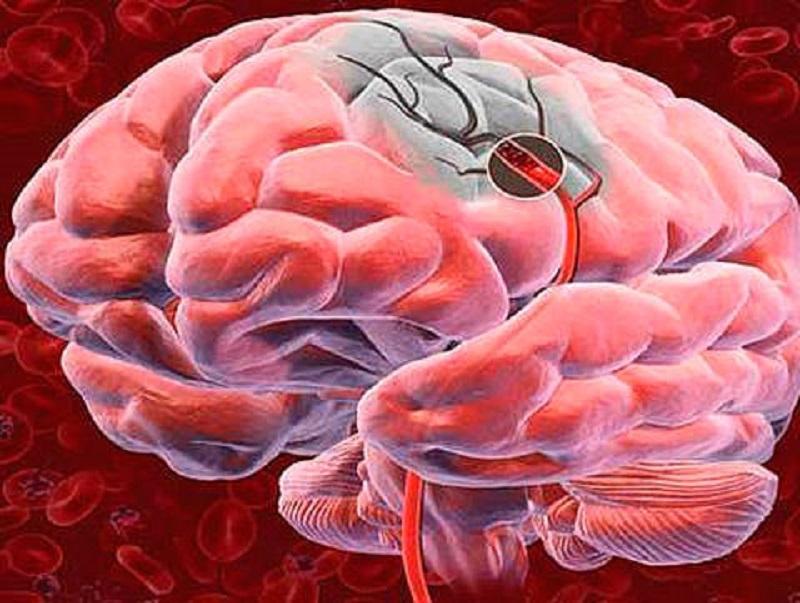علائم لخته شدن خون در مغز