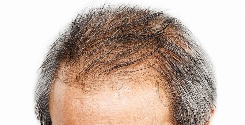 4علت اصلی ریزش مو