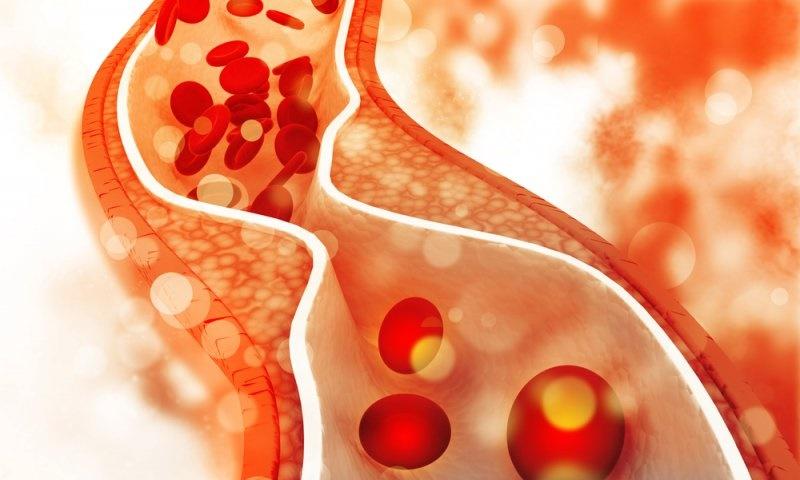 اثرات کلسترول بالا بر4 بخش اصلی بدن