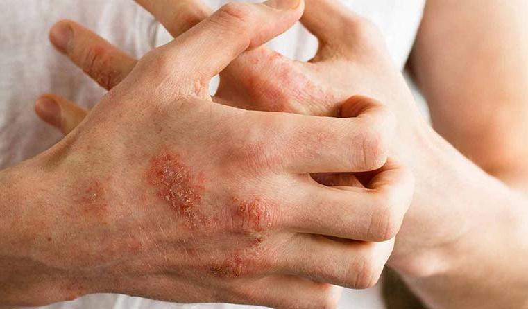 مقصر اصلی بیماریهای پوستی را بشناسید