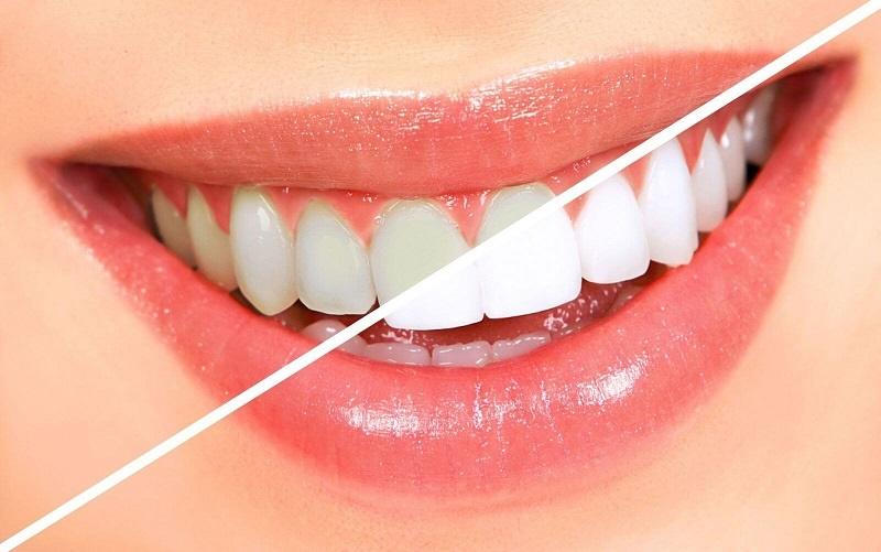راهی عجیب و ساده برای سفیدکردن دندانها در خانه