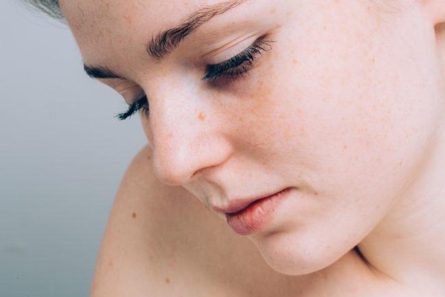 ۱۰ مشکل پوستی ای که نشانه بیماری های مهمی هستند+عکس