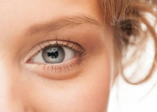 چرا صبح بعد بیدار شدن از خواب چشم هایم پف دارد؟+راه درمان
