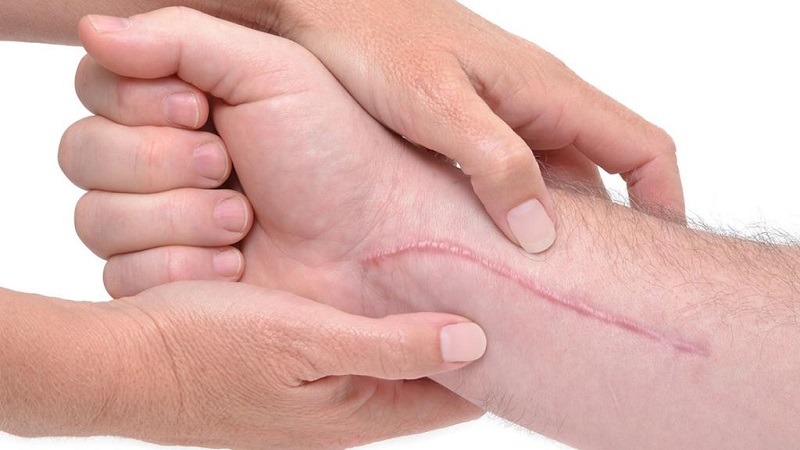 چرا زخم بعضی ها دیر خوب می شود؟توصیه هایی برای بهبود سریع زخم