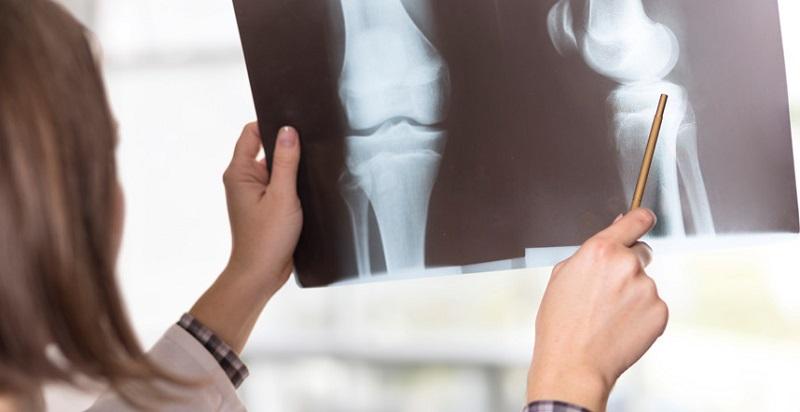 شایع ترین بیماری های التهاب مفاصل و علایم آن