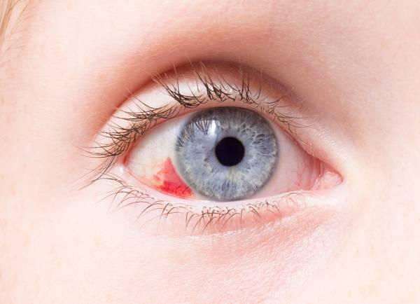 لکه های قرمز داخل چشم چه رازهایی درباره سلامت شما دارند؟