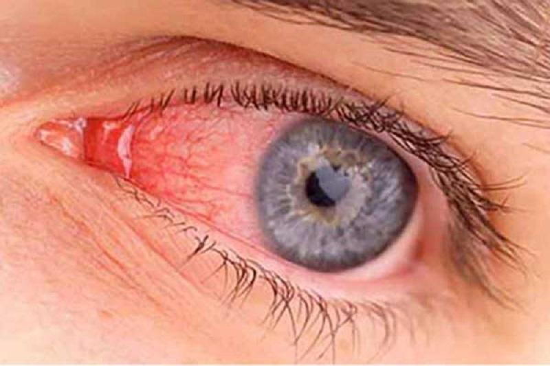 نگاهی به ناخنک چشم و درمان آن