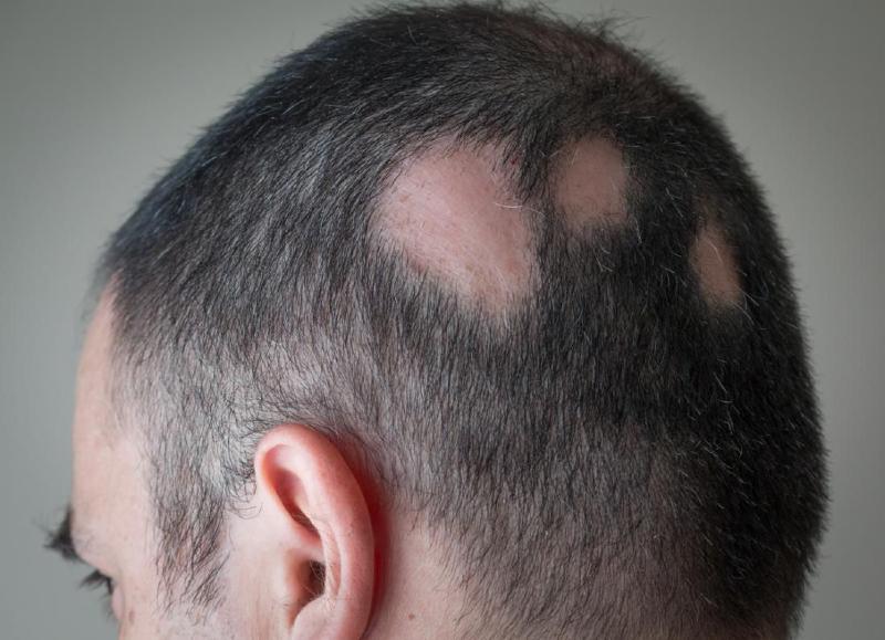 ترفندهای طلایی برای پیشگیری از ریزش مو در مردان