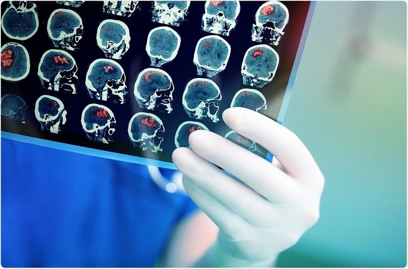 قارچهایی که به دلیل عفونت در مغز رشد میکنند