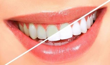 جرم گیری دندان با استفاده از چند روش خانگی