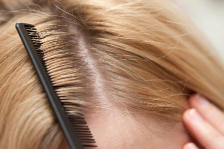 تکنیک های طب سنتی برای زیبایی موهایتان
