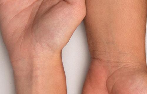 نوع مزاجتان را از رنگ پوست تشخیص دهید