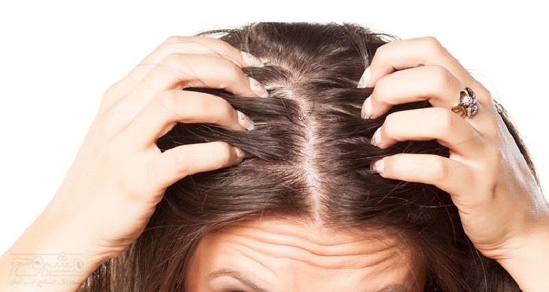 درمانهای طبیعی برای جوش کف سر