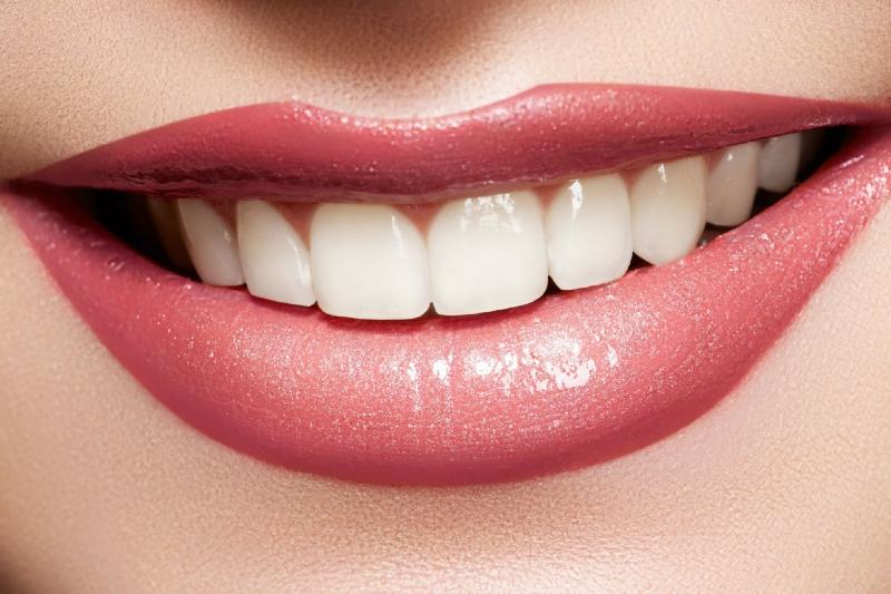 ۶ ترفند ارزان براي سفيد كردن دندانها