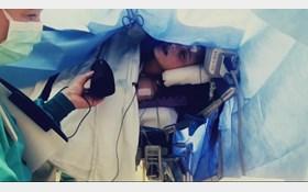 آواز خوانی یک بیمار هنگام جراحی مغز! + عکس