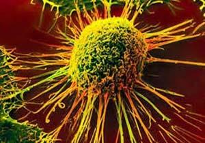 ایجاد سرطان به دلیل افزایش سودا